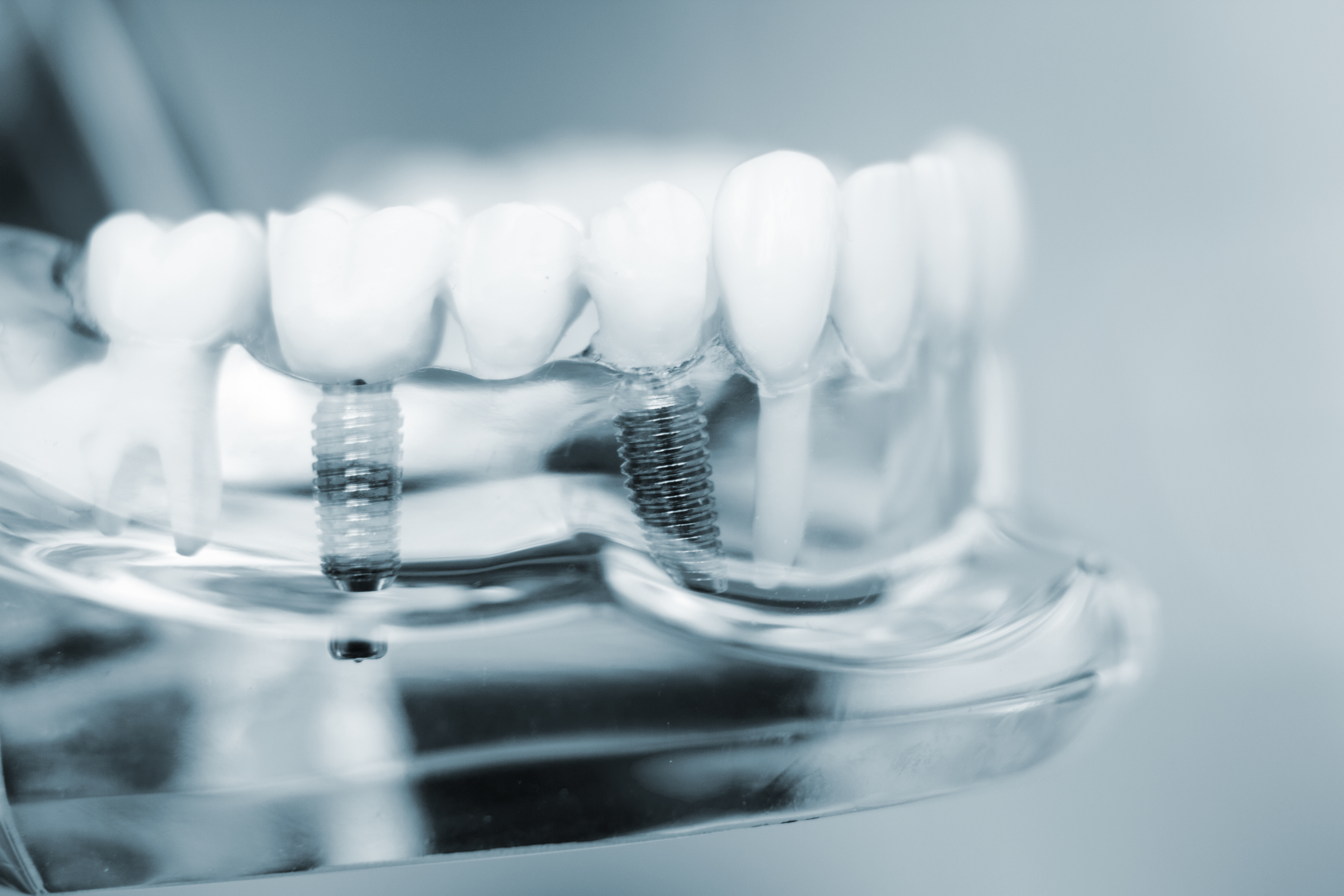 Image of Dental Implants
